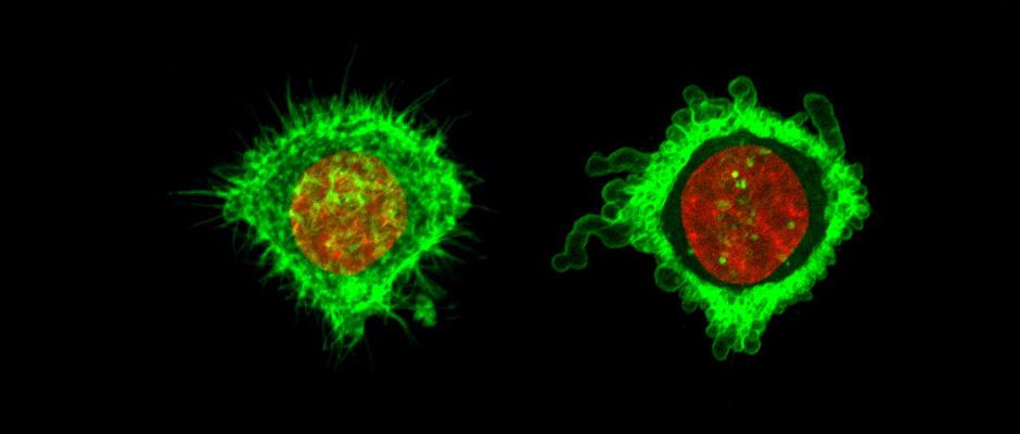 microtubule-medical-innovation-center-elvesys1